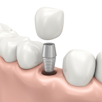 Fixed prosthesis on dental implants