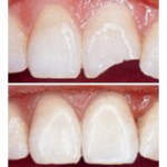 Dental Comestic Restoration