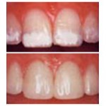 Dental Porcelaine Veneers