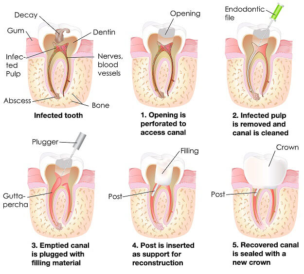 Root Canal Treatment Steps Montreal