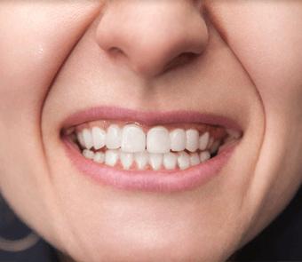 Dental cosmetic restoration service