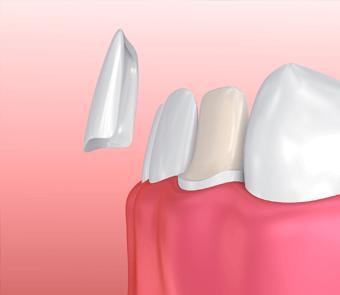 Dental porcelaine veneers service
