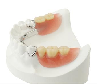 Removable partial denture prosthesis