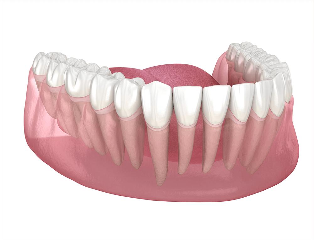 Periodontal Treatments - Montreal Dental Clinic